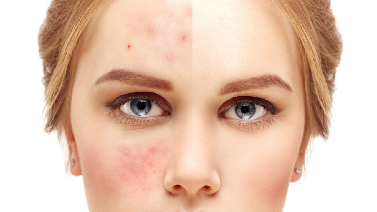 Suffering From Acne? 5 Ways to Survive A Bad Skin Day